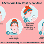 How Long Does Puberty Acne Last?  (What is Teenage Acne)